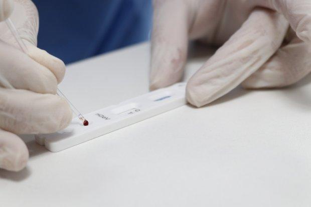 teste_rapido_novo_coronavirus__covid-19_20200504_1524810242