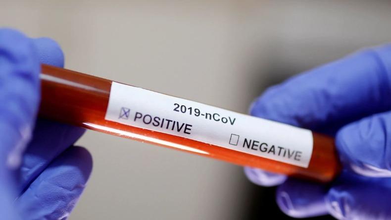 coronavirus_positivo_790x444_17062020134742