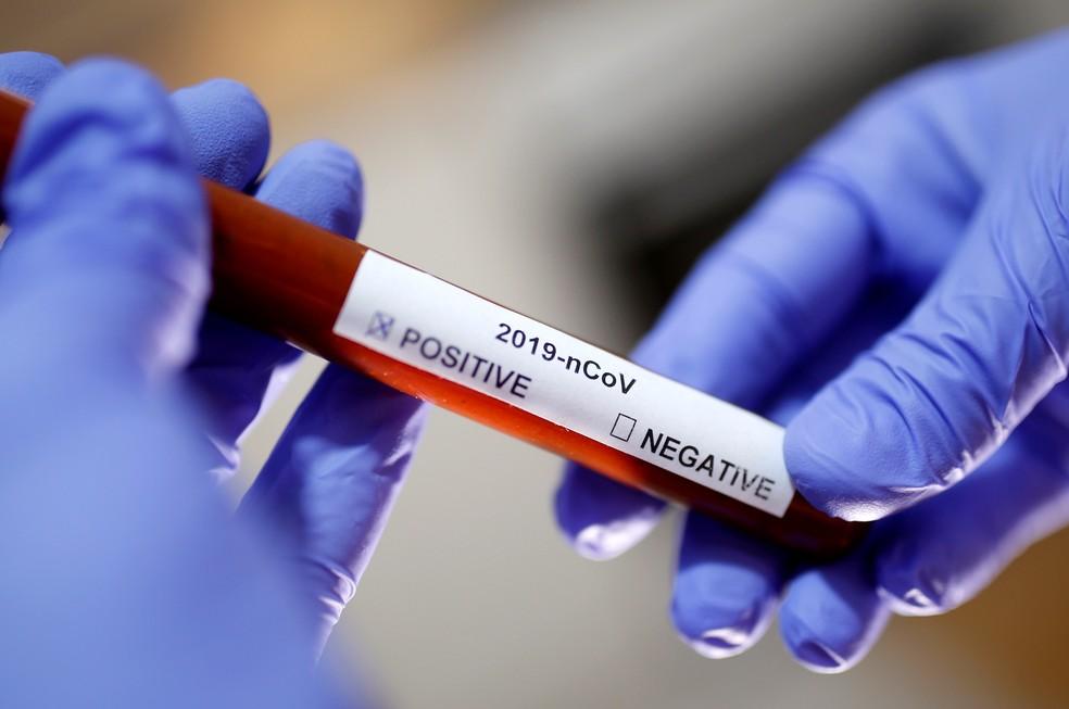 2020-03-04t194551z-1979359980-rc27df9gk7un-rtrmadp-3-health-coronavirus-usa-labs