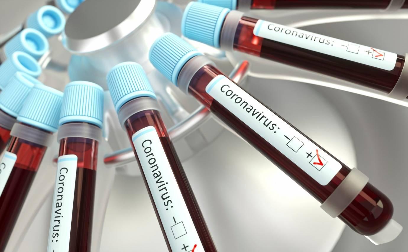 a-paciente-nao-conseguiu-se-submeter-ao-exame-do-coronavirus-e-agora-esta-em-casa-em-quarentena-210590