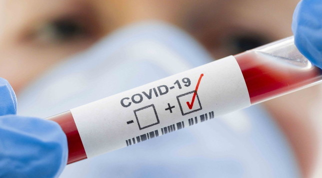 positivo-Covid-19